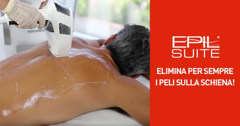 Epilazione laser sulla schiena, tra le più richieste dagli uomini!
