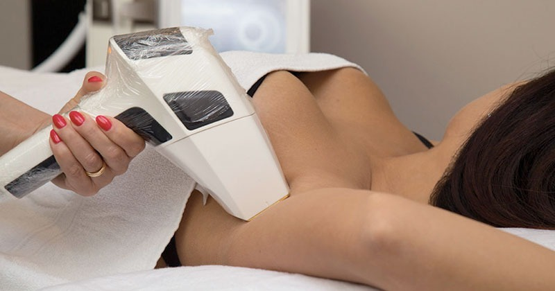 L'epilazione definitiva laser è il trattamento ideale anche per le ascelle!