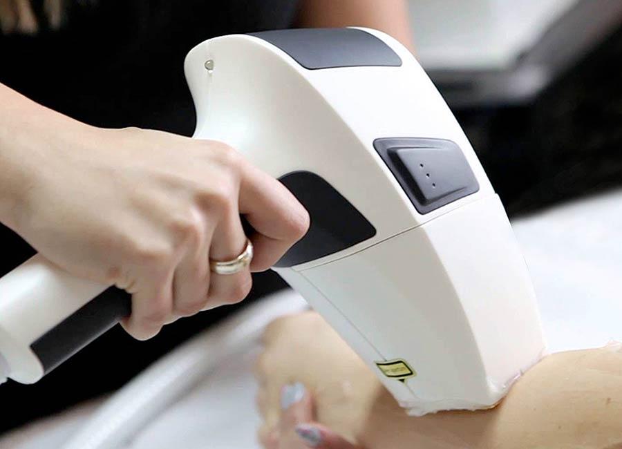 Epilazione laser sul dispositivo XL